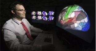 قشرة المخ