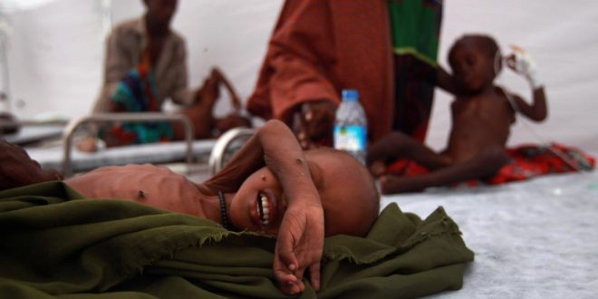 MOGADISHU, SOMALIA - AUGUST 19:  Somali children receive medical treatment at a Turkish field hospital on August 19, 2011 in Mogadishu, Somalia. The tented hospital, opened this week by the Turkish Ministry of Health, is located next to a large camp for Somalis displaced by famine and drought. Some 100,000 Somalis have fled famine conditions in the countryside to Mogadishu in the last three months, according to the UN, setting up makeshift shelters in camps throughout the capital.  (Photo by John Moore/Getty Images)