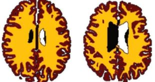 160804170529_being_overweight_ages_peoples_brains_640x360_drlisaronan_nocredit